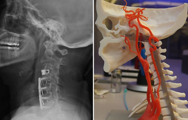 Lawyers and doctor witnesses have been limited in personal injury cases to using radiological images like that of a Lancaster woman, left, to explain injuries. That changed in a recent civil case, where a 3D-printer-built head and neck arterial system, right, replicated that of the woman, hurt when struck by a truck in 2016. (John Hickey/Buffalo News, photo at right)
