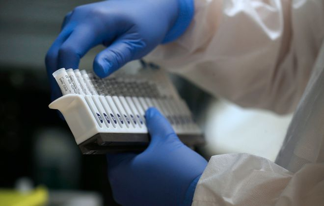 New York State this week urged public health labs to restrict their tests to health care workers and certain types of high-risk patients. (Robert Kirkham/Buffalo News)