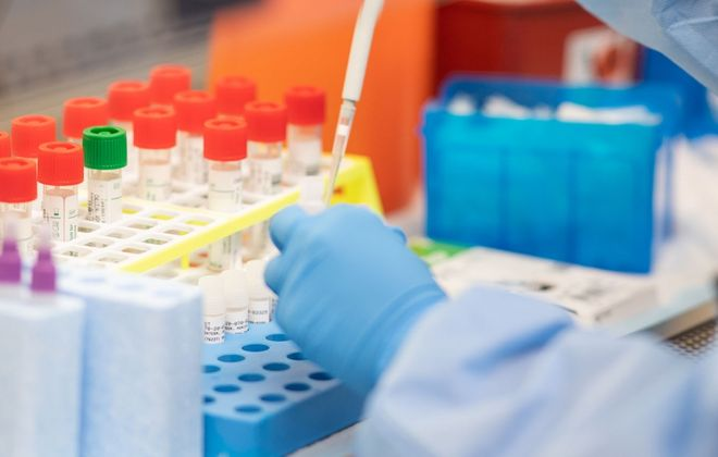 Erie County does less Covid-19 testing per 1,000 residents than any other major county in New York State. (Getty Images)